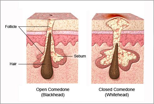 pictures different types of acne \u0026 how to treat them papule pimple deep pimple diagram get wiring diagram