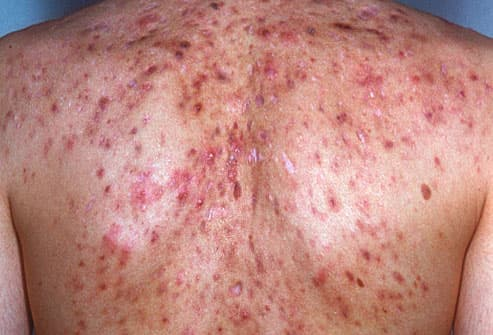 Acne conglobata on person's back