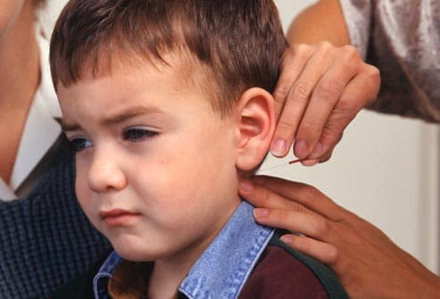 young boy receiving acupuncture