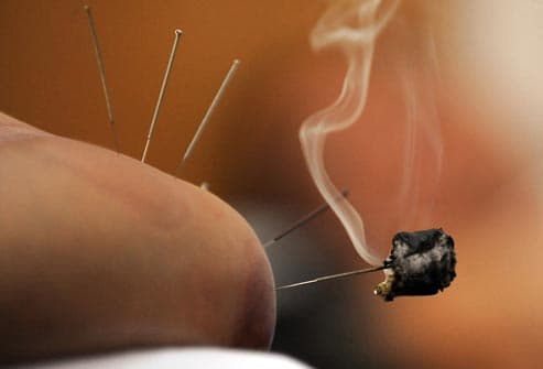 moxibustion acupuncture