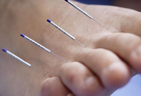 acupuncture in toes