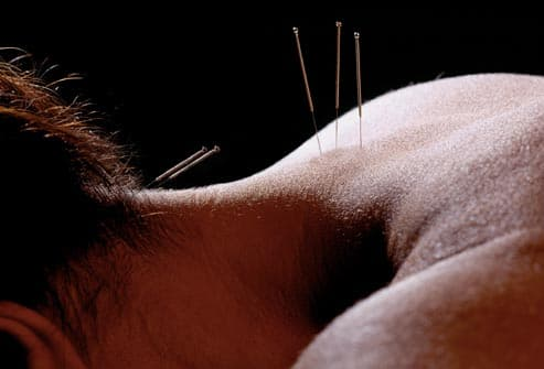 neck acupuncture