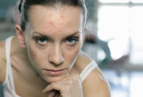 ANEMIC WOMAN WITH ACNE