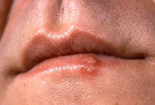 Photo of herpes simplex lesion on the lower lip