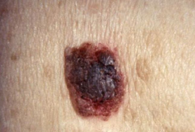 Photo of seborrheic keratosis