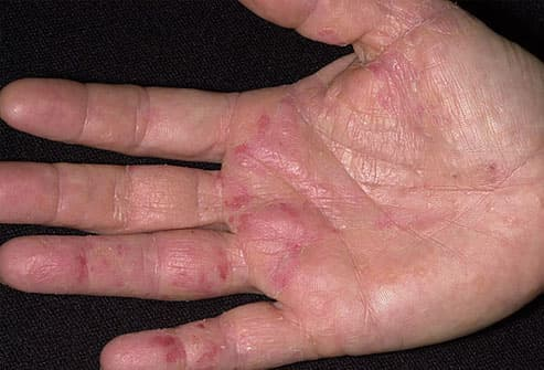 eczema injection treatment adult