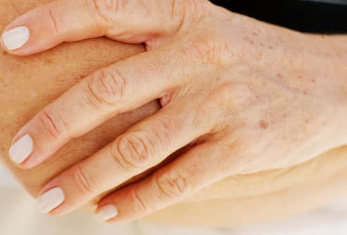 Photo of woman's hand showing age spots