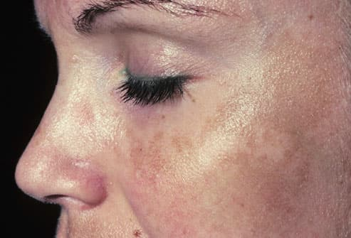 Picture of Melasma ('pregnany mask')