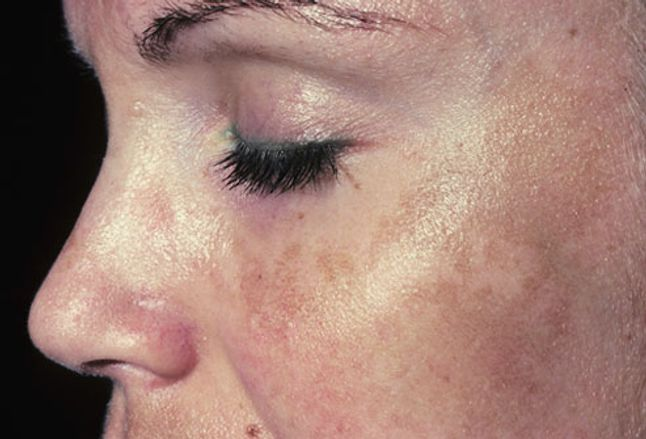 Photo of melasma (pregnancy mask) on woman