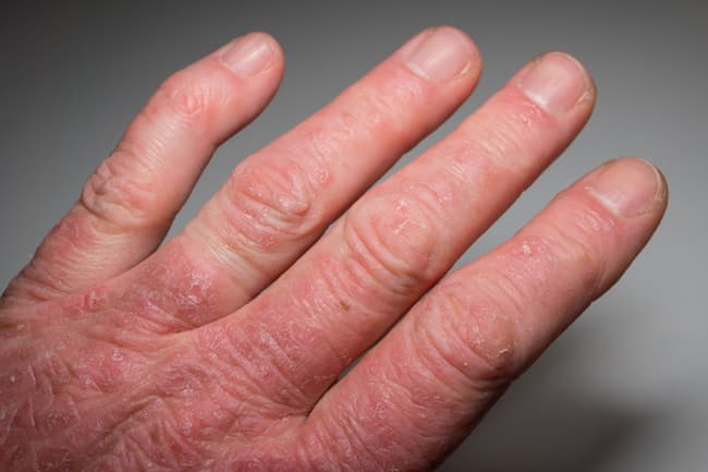 photo of psoriatic arthritis in hand