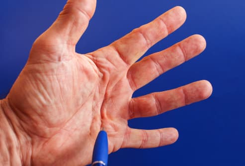 How Your Hands Change As You Age: Pictures of Aging Hands