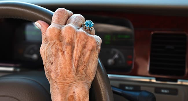 Pictures: Your Hands as You Age