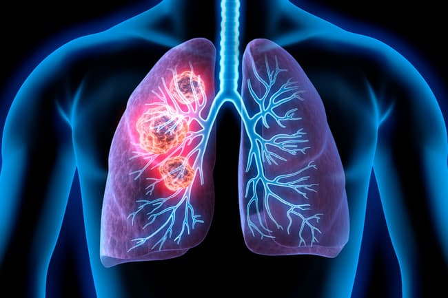 photo illustration of lung cancer
