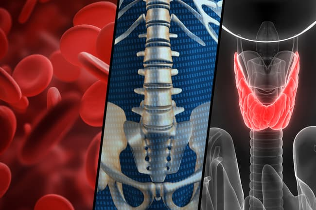 photo of blood, bone and thyroid triptych