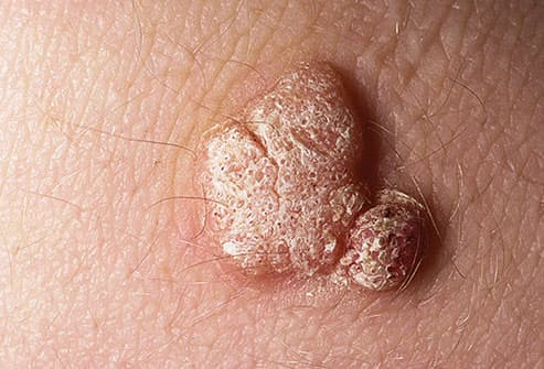 hpv warts elbow