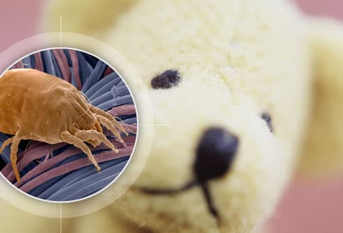 Hidden Allergy Spots In Your Home With Pictures