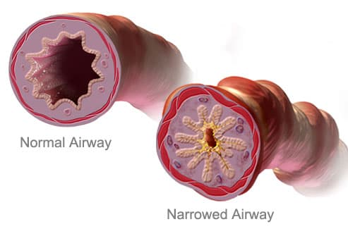 Normal Airway vs. Narrowed Airway