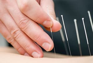 accupuncture needles in skin