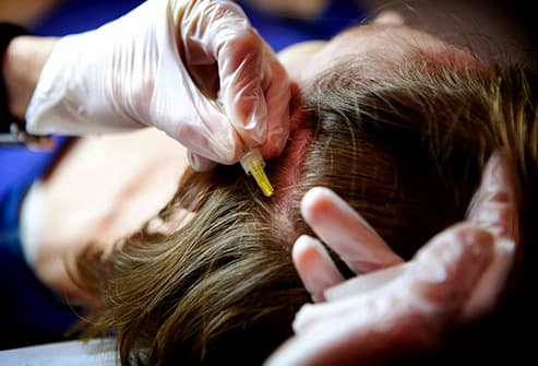 carboxy therapy hair treatment