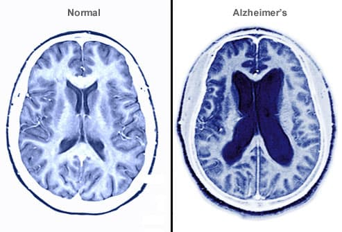 Image result for alzheimer's