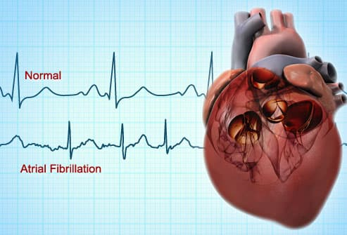 Image result for atrial fibrillation animation