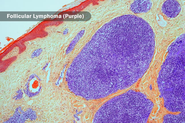 B-cell lymphoma light micrograph