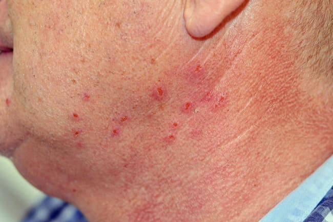 photo of chigger bites on neck