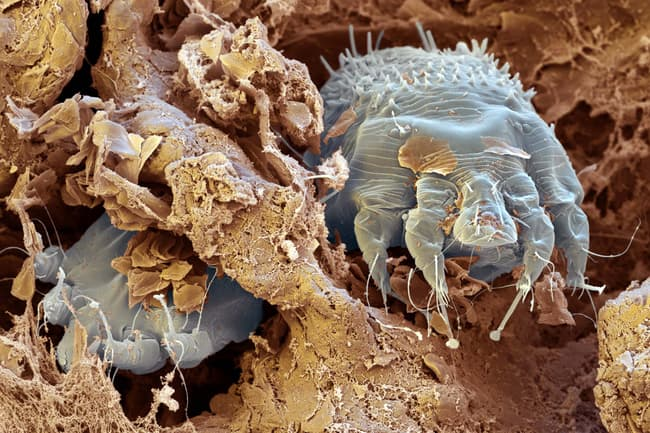 photo of scabies mites