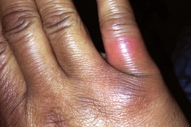 photo of brown recluse spider bite