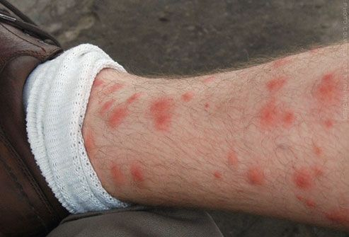 Red, itchy chigger bites on man's leg