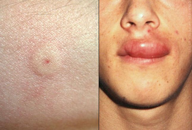Details of wasp sting and swollen upper lip