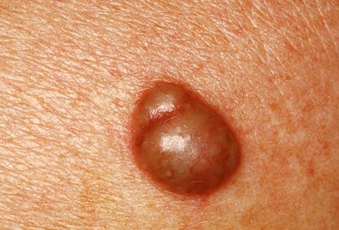 Slideshow: Below the Belt: Rashes, Bumps, and Lumps