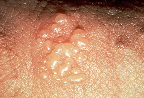 Slideshow Below The Belt Rashes Bumps And Lumps