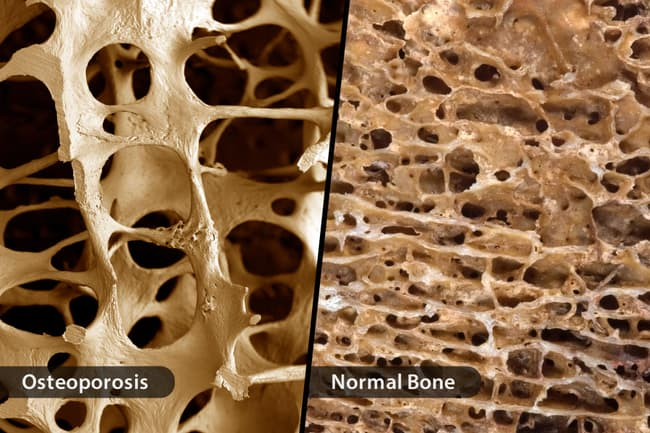 photo of osteoporosis vs normal bone diptych