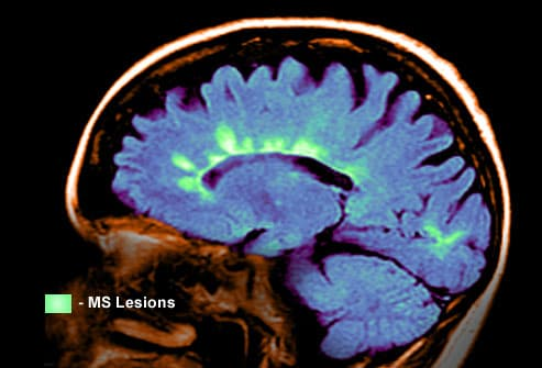 MRI scan showing MS lesions in the brain