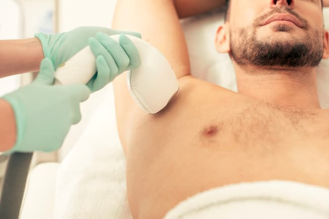 photo of laser hair removal on armpits