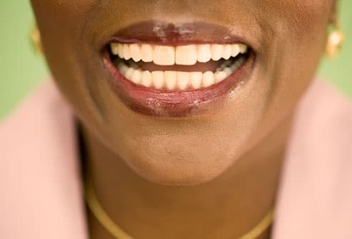woman with front tooth gap