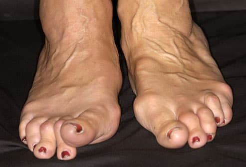 Woman With RA in Her Feet
