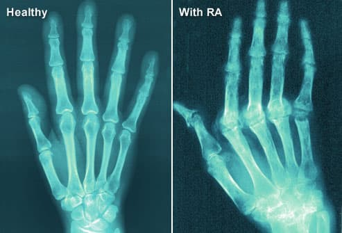 X-Ray Image of RA in Hands