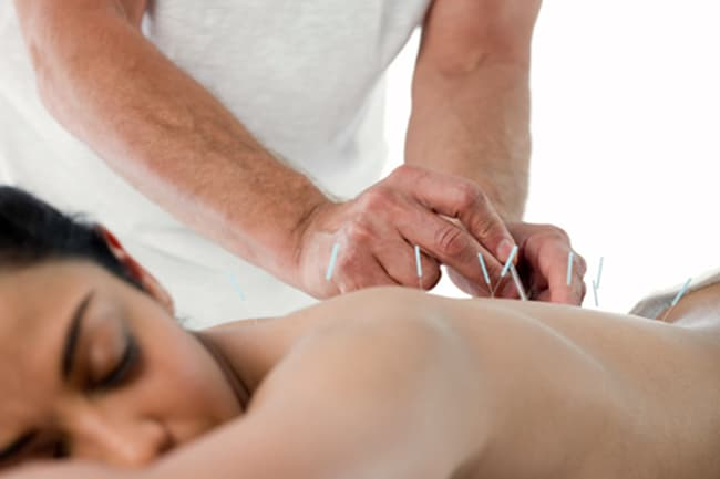 photo of woman receiving acupuncture treatment