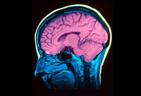 MRI (magnetic resonance imaging) of a normal brain