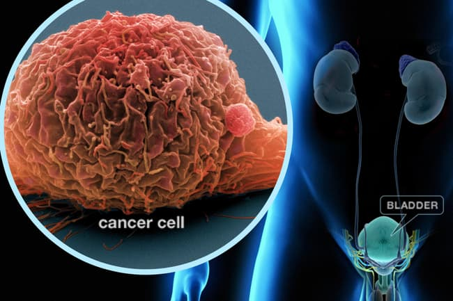 photo illustration of bladder cancer