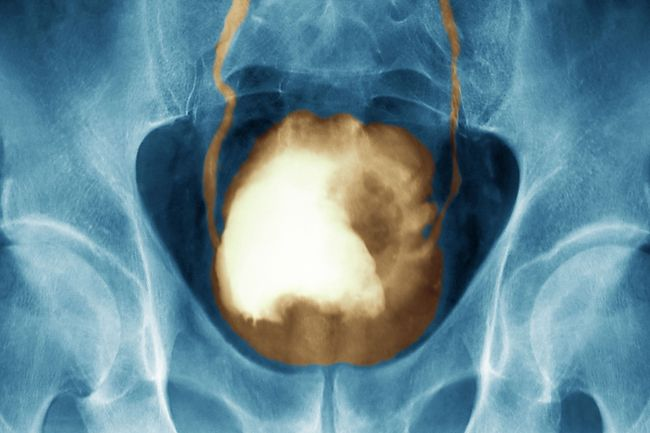 photo of xray of bladder cancer