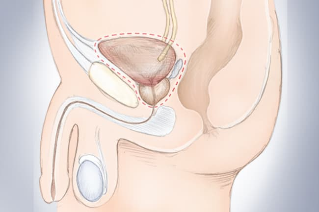 illustration of bladder surgery
