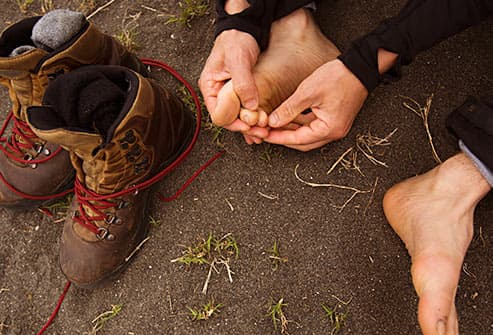 hiker tending to blister