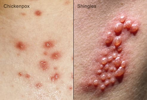 shingles and chicken pox