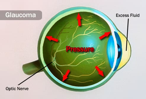 pressure in eye illustration