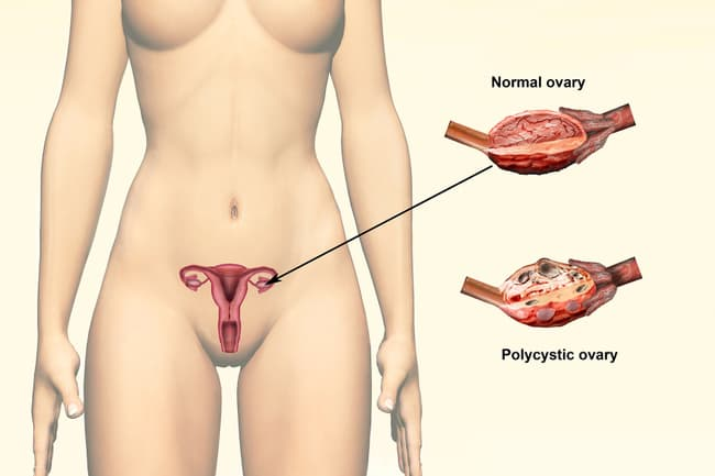 photo of woman with pcos illustration