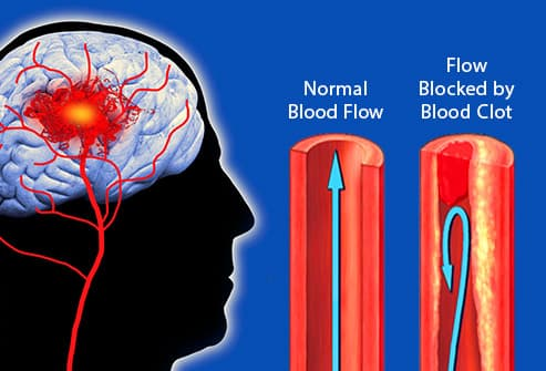 illustration of blood clot in brain