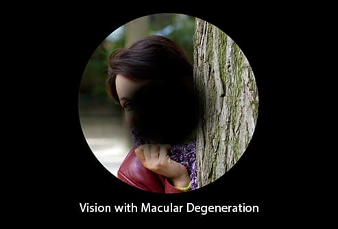 simulation of macular degeneration